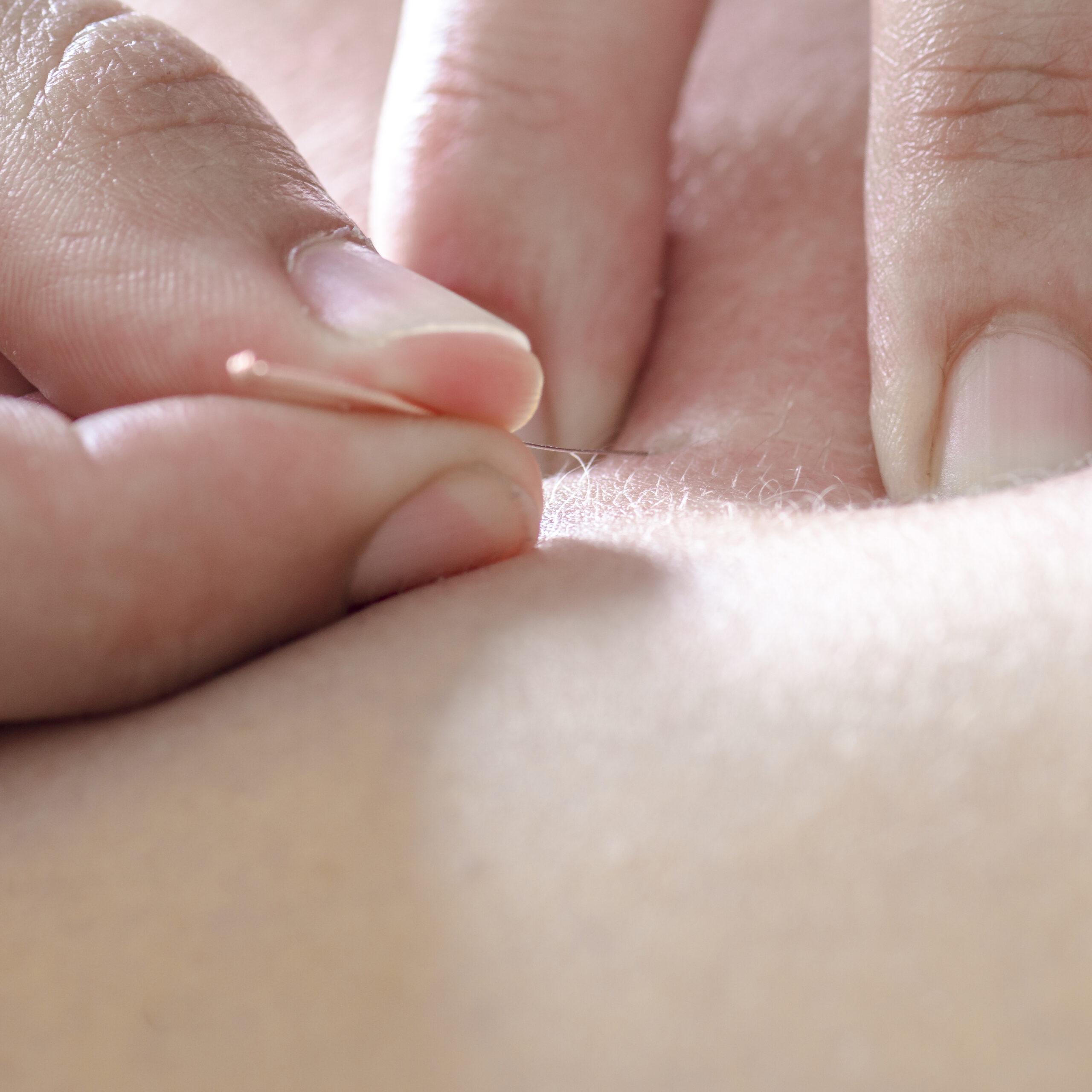 Physitoterapist / chiroprator doing a back massage. Osteopathy.